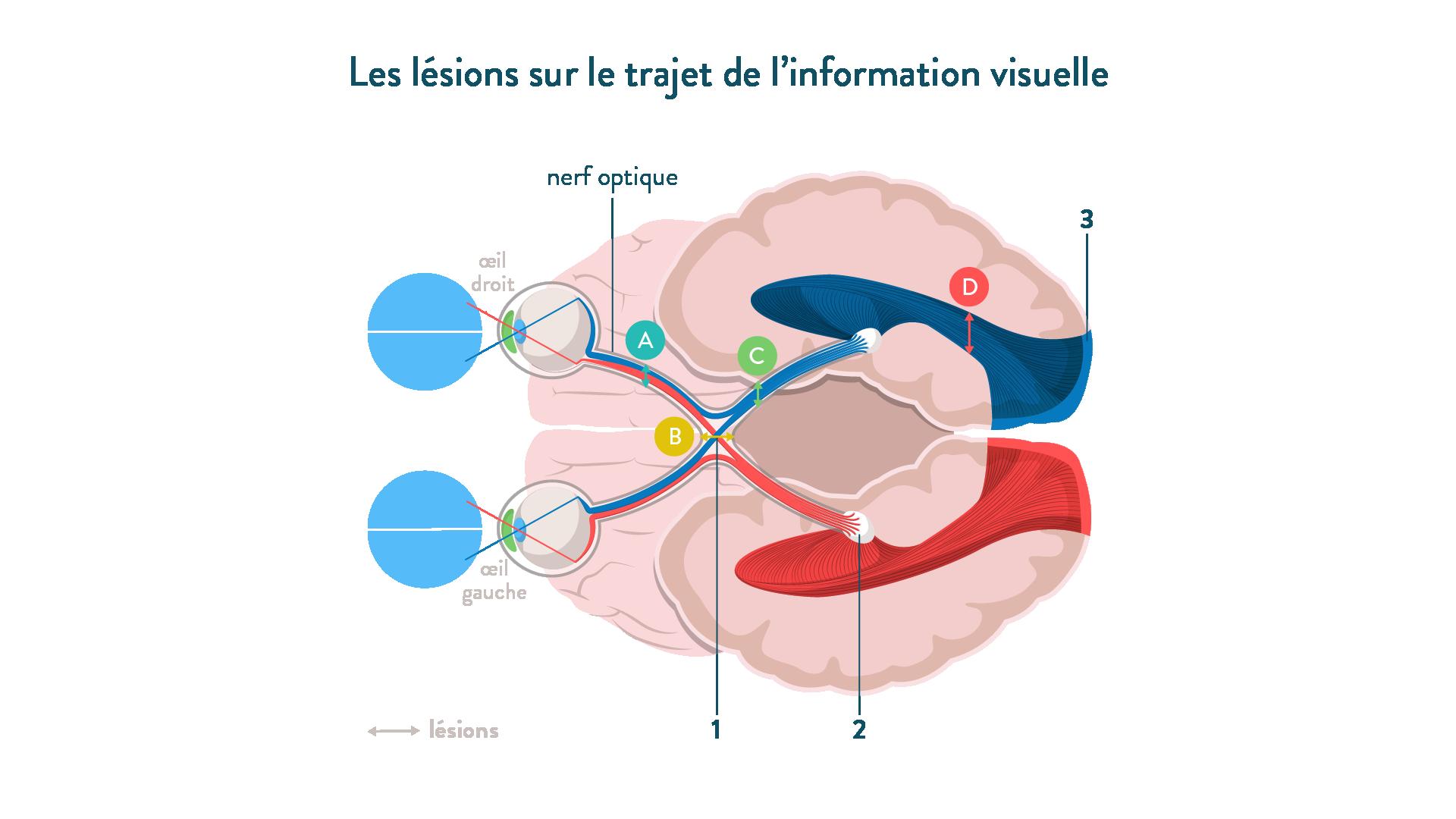 Nerf optique lésions-trajet information visuelle-sciences-1ère-es-l