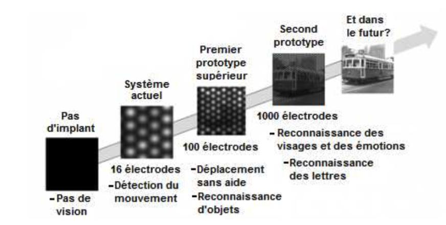 Évolution de la résolution de l'implant électronique