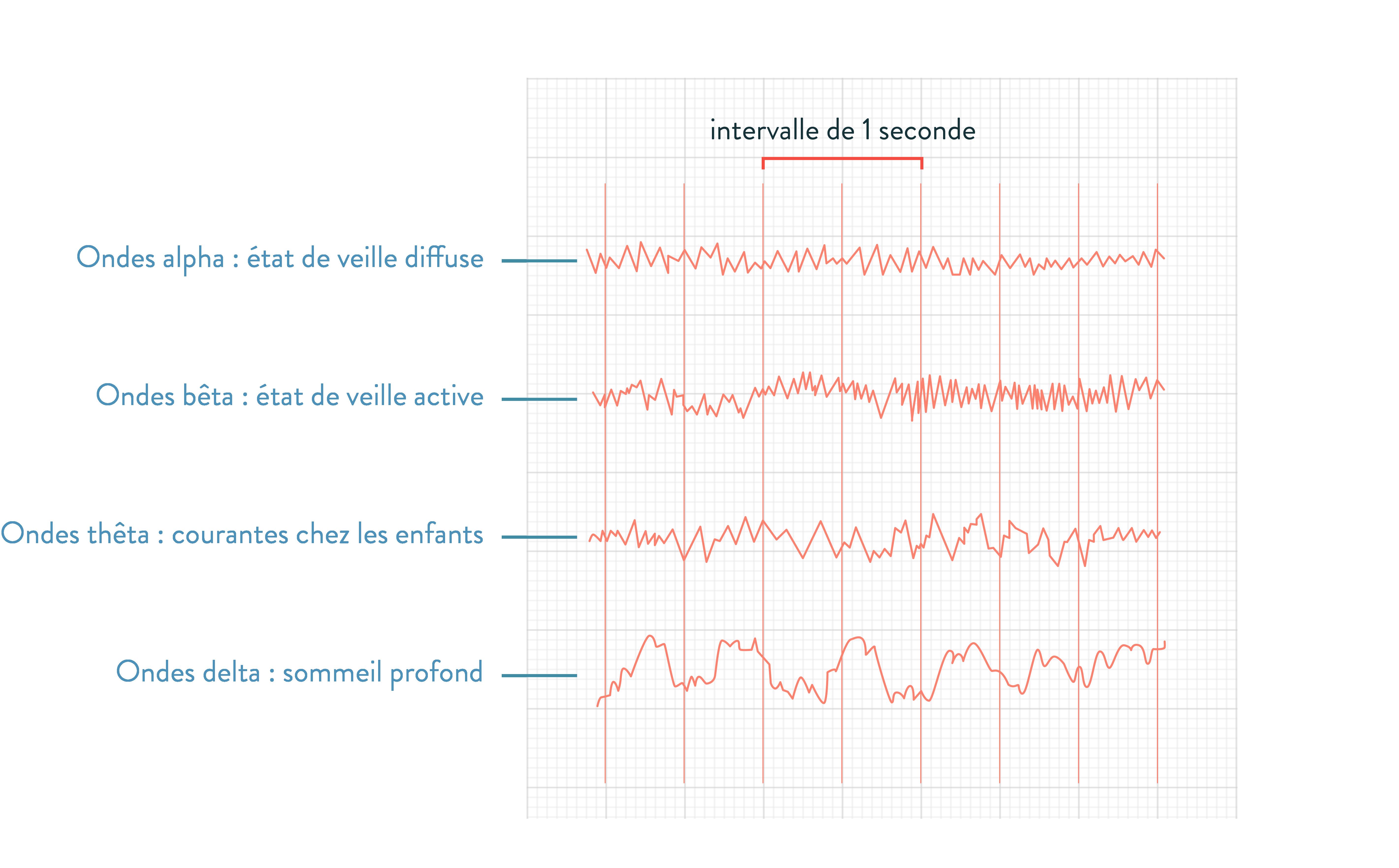 Électroencéphalogramme type 2nde