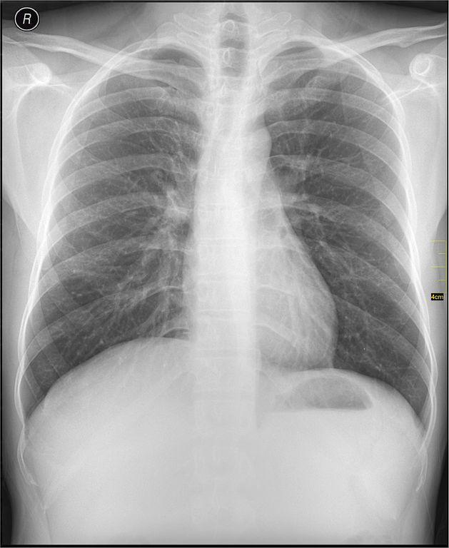 Radiographie du thorax (vue de face) 2nde