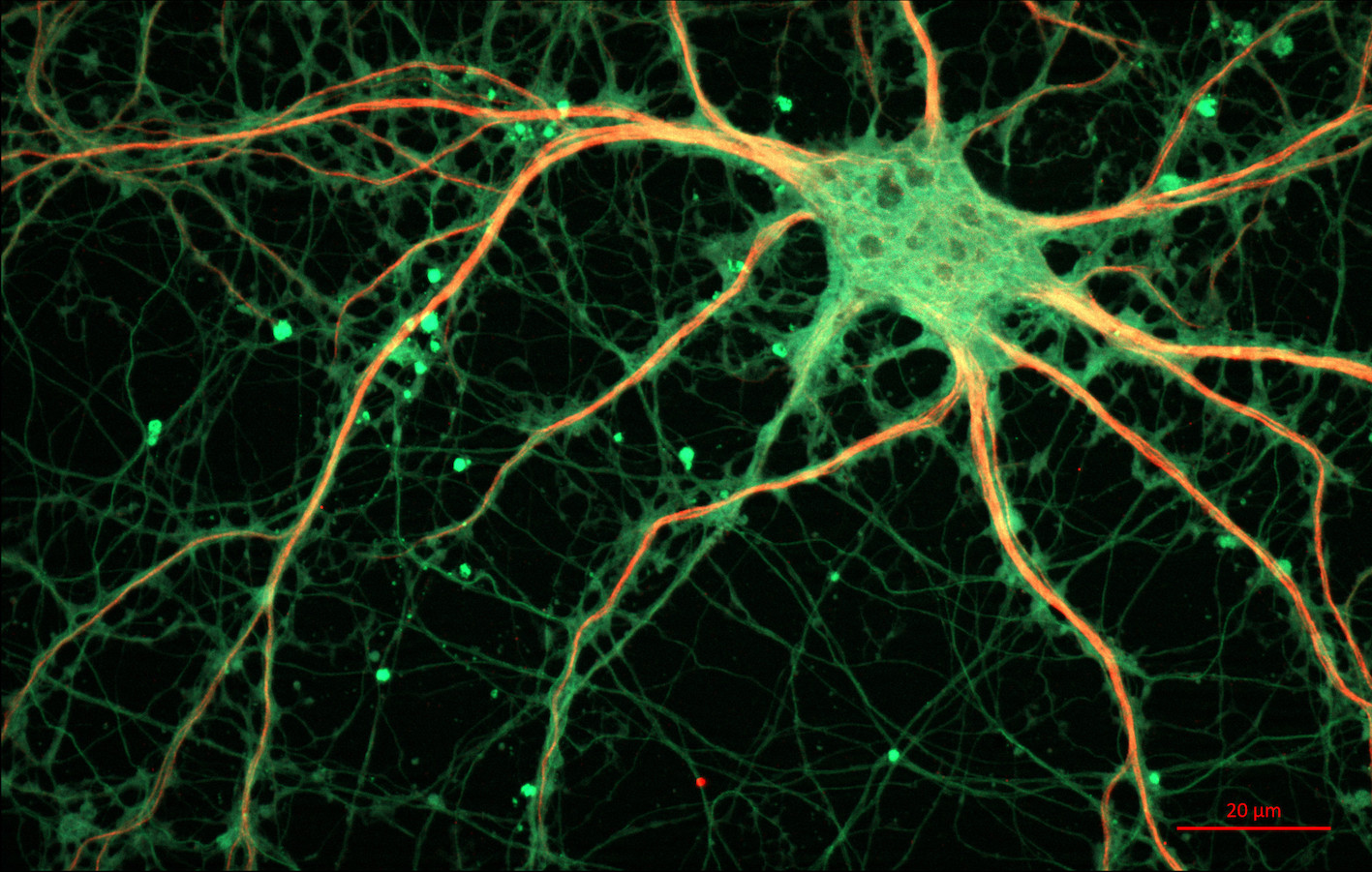 Neurones cellules nerveuses-svt-6eme-schoolmouv