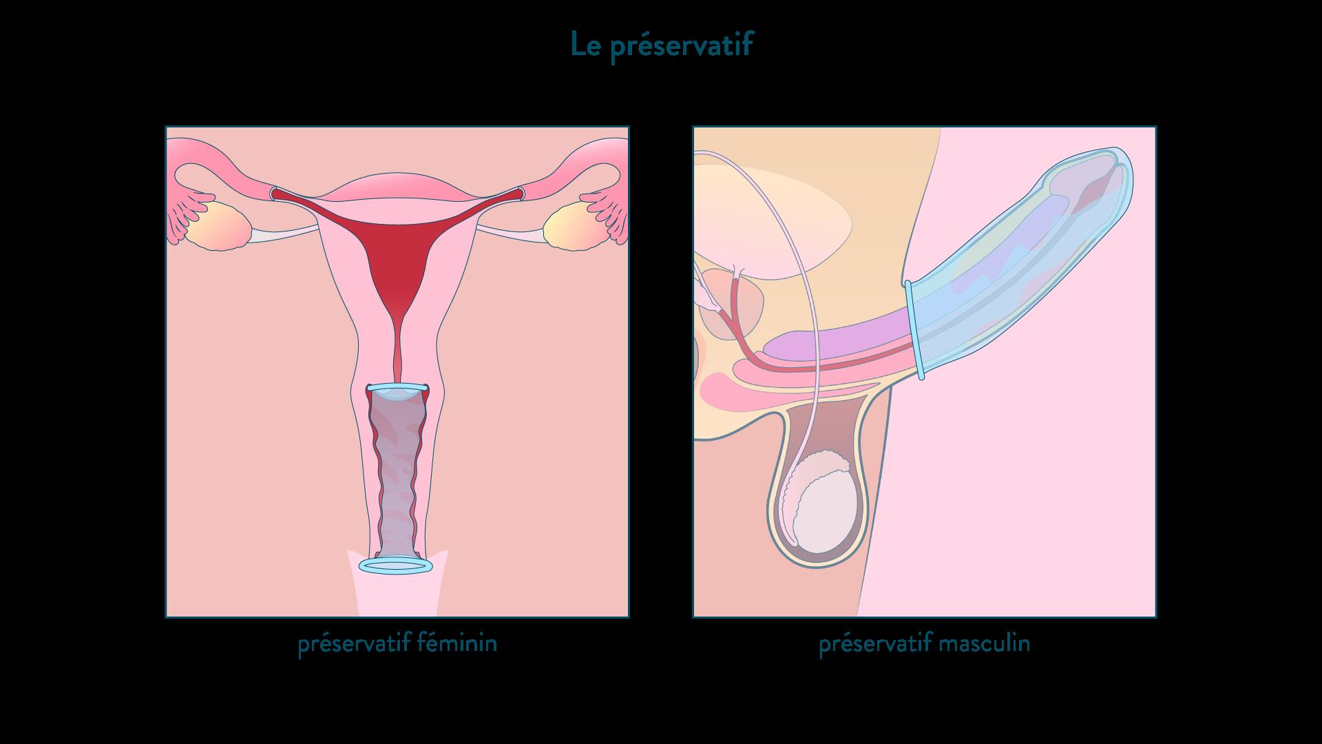 Le préservatif, féminin et masculin