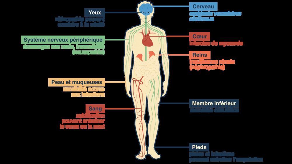 Problèmes liés au diabète sur l'Homme